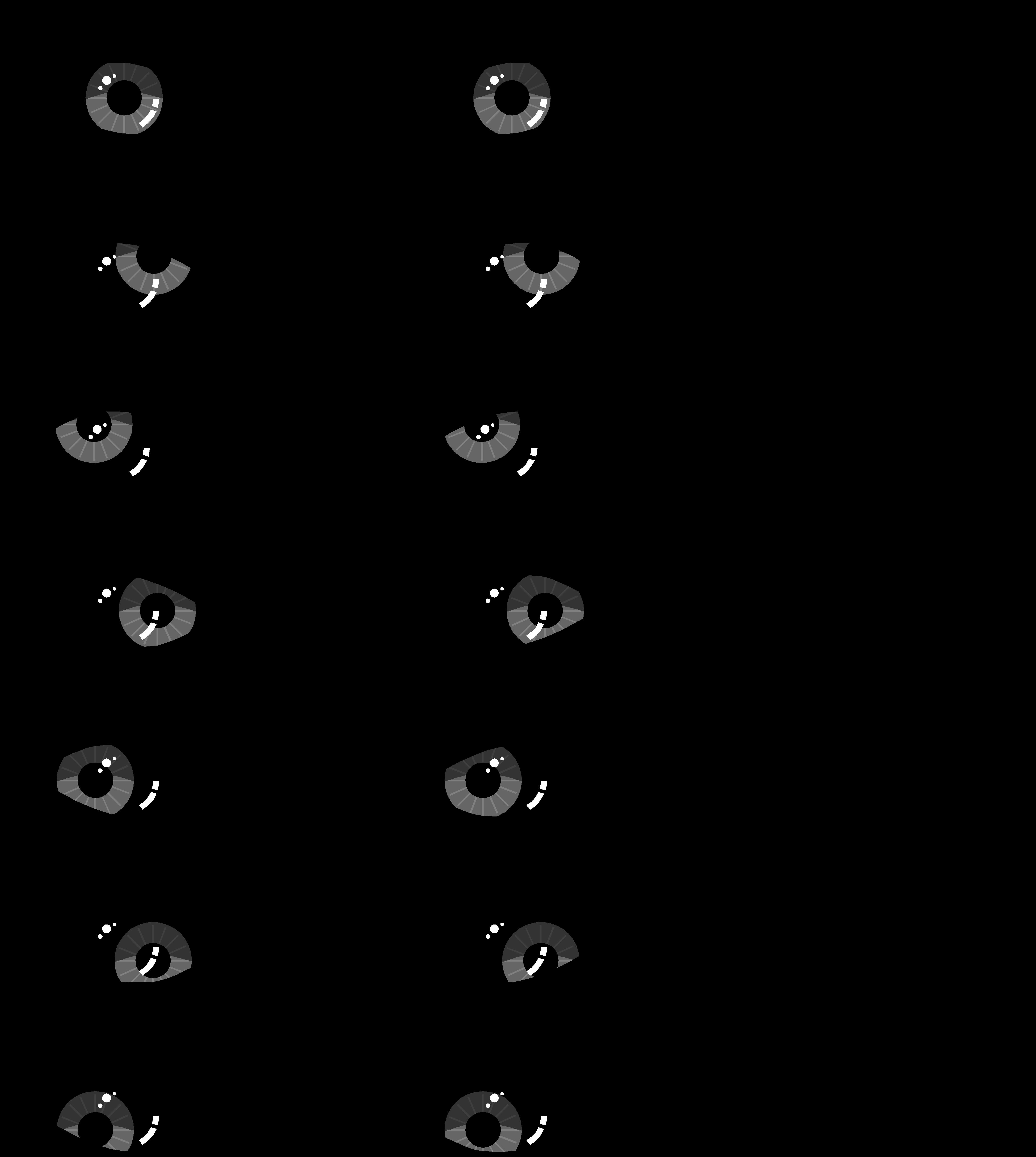Oogpatronen NLP